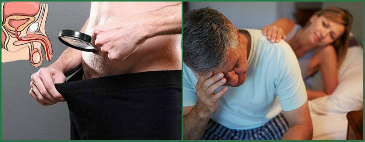 Влияние простатита на потенцию у мужчин простатит у кота и кастрация