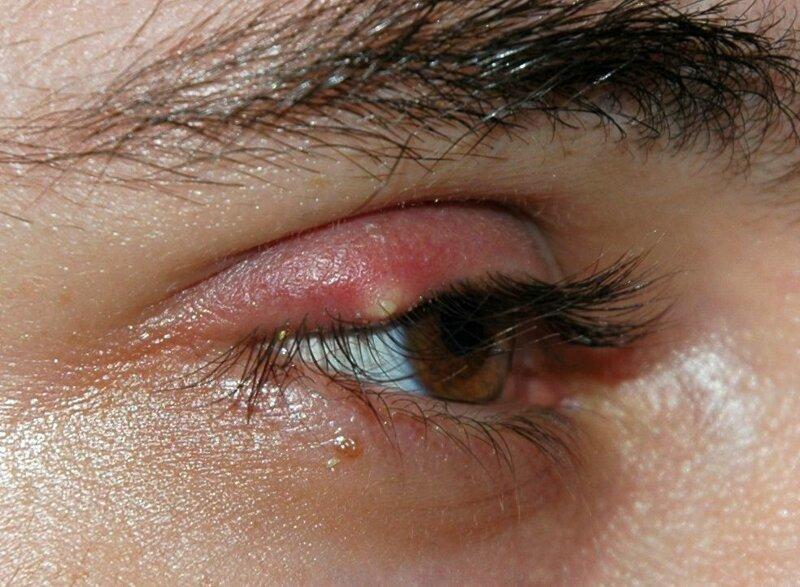Виды и лечение ячменя на глазу