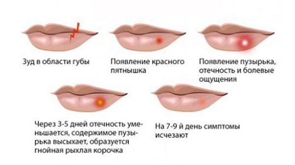 Симптоматика заболевания на различных стадиях