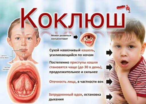 С 1957 года — введение прививки от коклюша в первый год жизни и массовая вакцинация детей СССР до 5 лет - вакцина входит в прививку АКДС