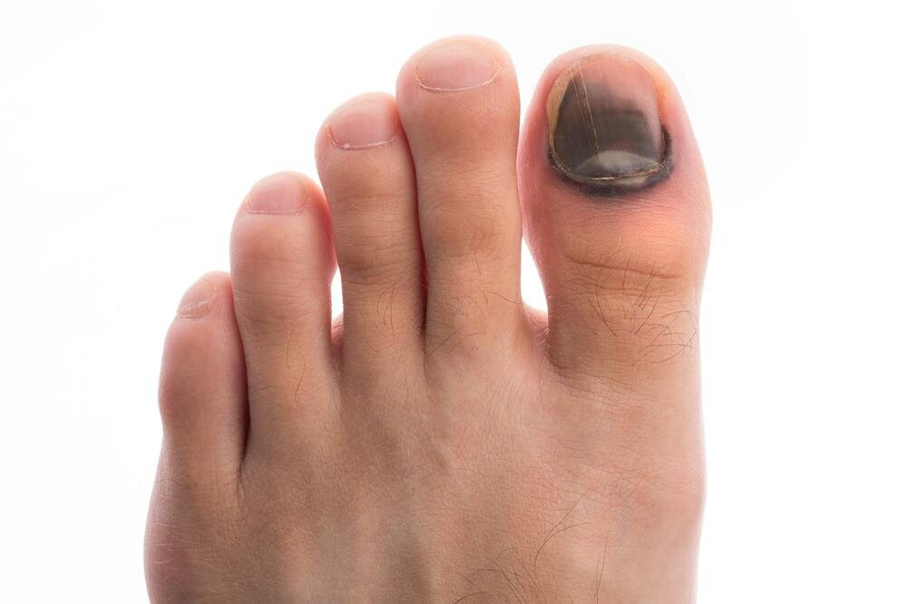 Причины изменения цвета ногтя