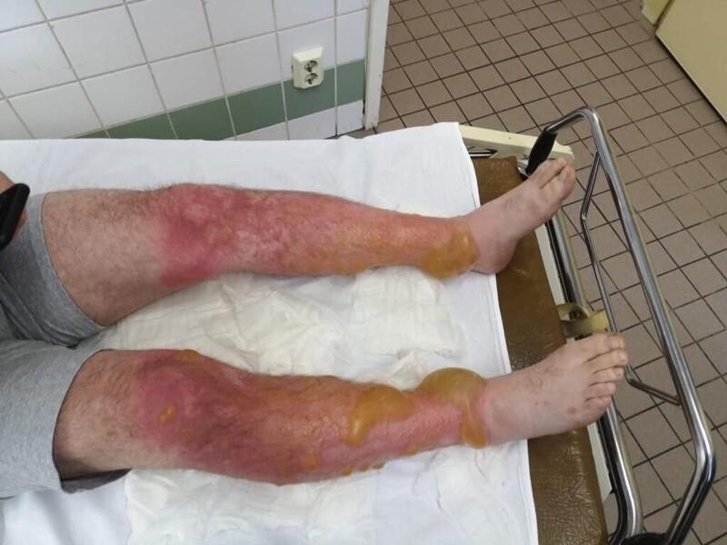 Врачи «Склифа» показали жуткие ожоги на теле дачника после контакта с борщевиком