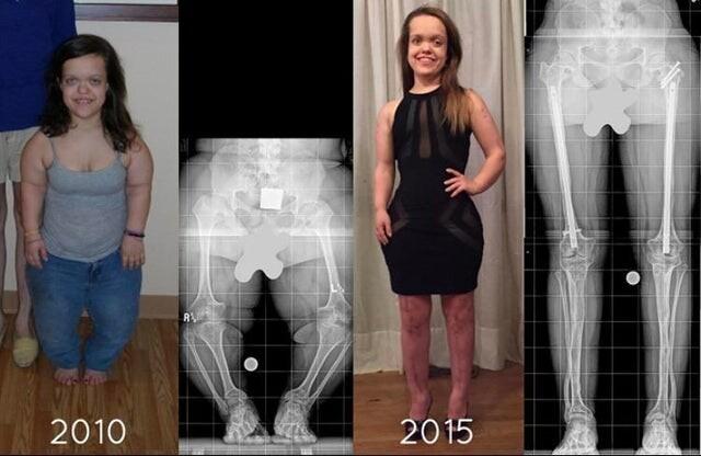12. Пациентка с карликовостью с помощью операций увеличила длину ног и рук на 10 см