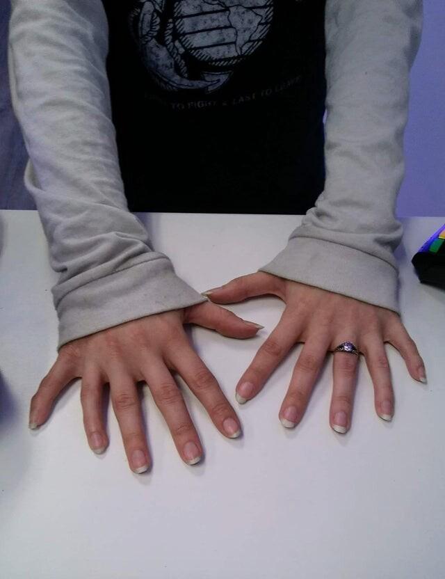 """4. """"Я работаю в магазине электроники в Южной Каролине, США. Сегодня ко мне зашла женщина, у которой 6 пальцев на каждой руке. Это не фотошоп! Я бы даже не заметил, если бы она сама не сказала об этом"""""""