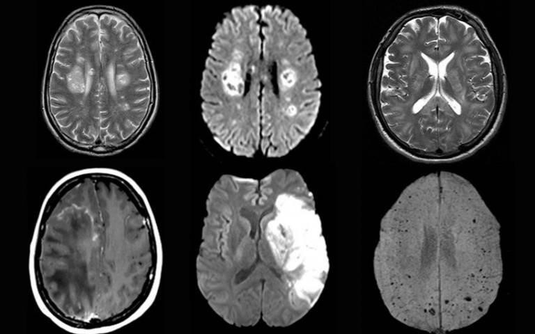 Серьезные повреждения мозга