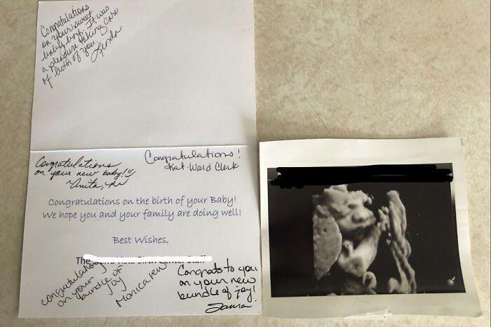 17. Когда женщина забыла в родовой палате УЗИ-снимок, и медсестры прислали его по почте вместе с поздравительной открыткой
