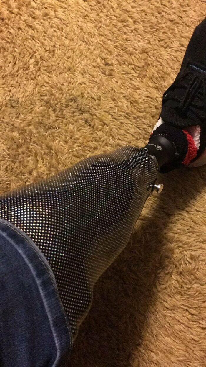 """""""Жена купила мне новый протез на Рождество"""""""