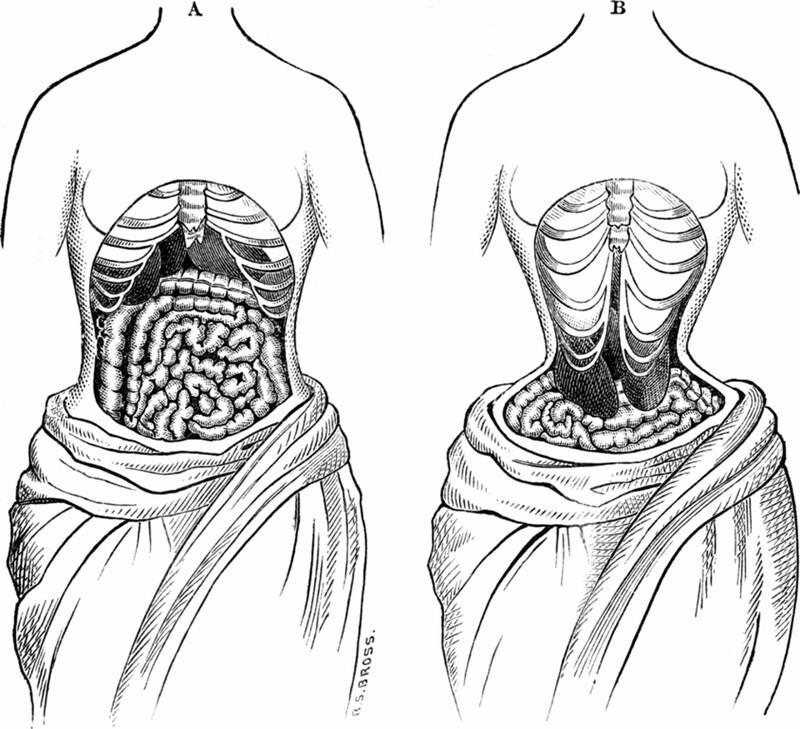 Кстати, вот как выглядят внутренние органы женщины при длительном ношении корсета:
