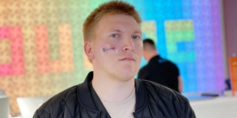 iPhone лишним не бывает: мужчина сделал тату на лице ради смартфона